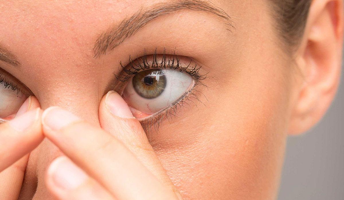 اسباب التهاب جفن العين