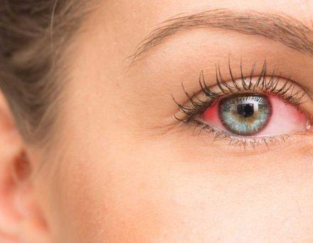 احمرار العينين (3)