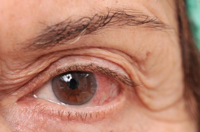 احمرار العينين (1)