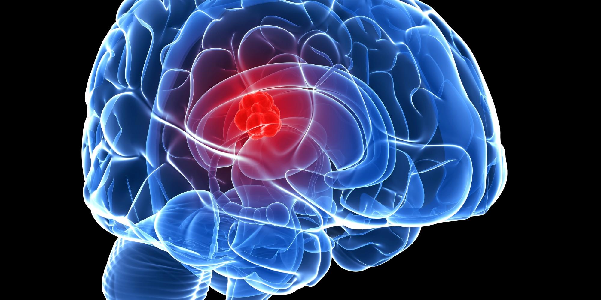 اعراض سرطان المخ 3