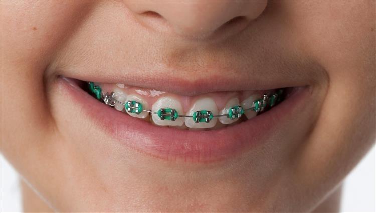 قبل ما تعملى تقويم اختارى الألوان المناسبة لبشرتك ودرجة أسنانك اليوم السابع