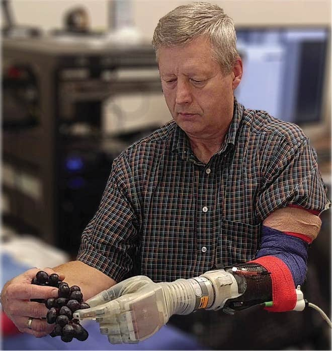 الذراع الروبوتية 2