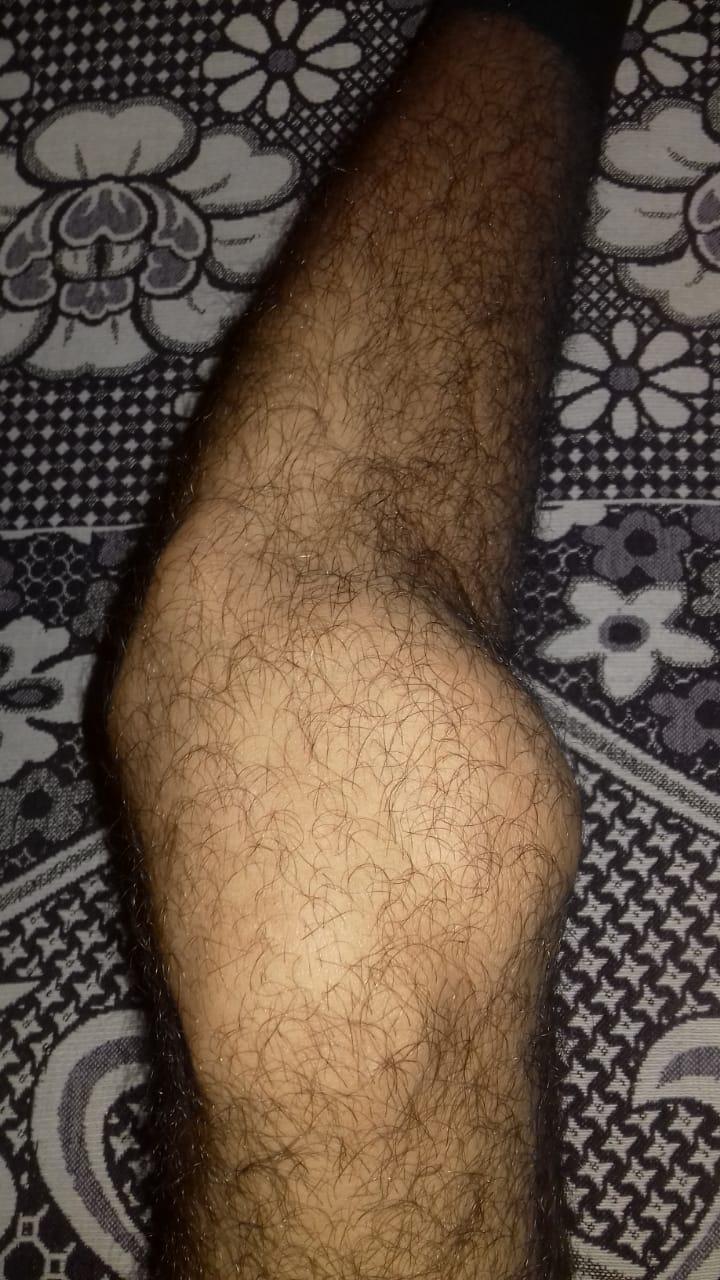 شكل الركبة