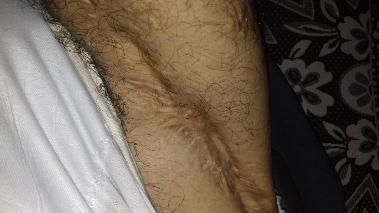 شكل القدم