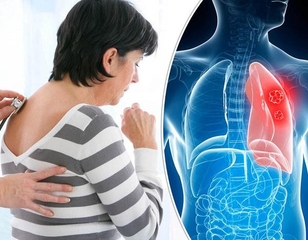 اعراض سرطان الرئة 3