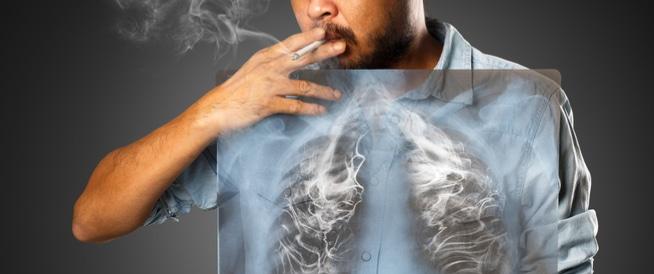 اعراض سرطان الرئة 4