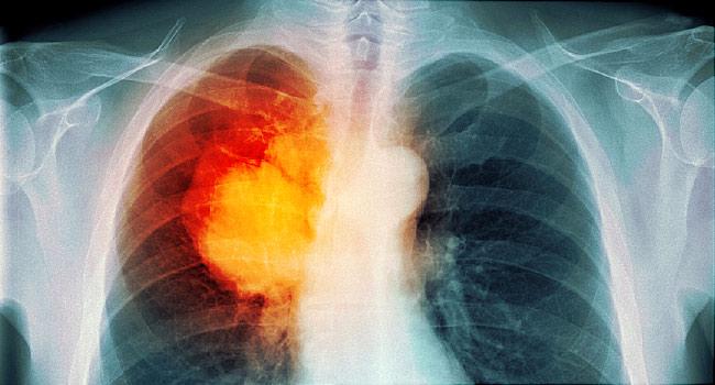 اعراض سرطان الرئة 1