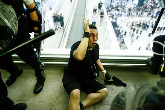 مصاب إثر الاشتباكات مع الشرطة