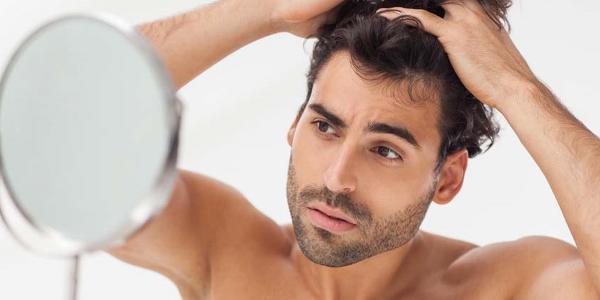 تساقط شعر الرجال1