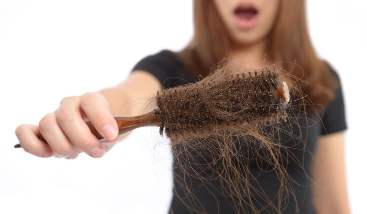 سقوط الشعر (3)
