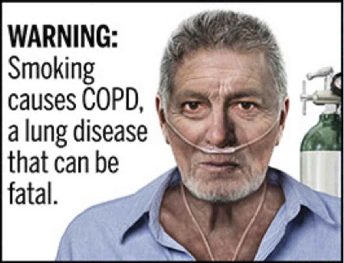 مخاطر التدخين
