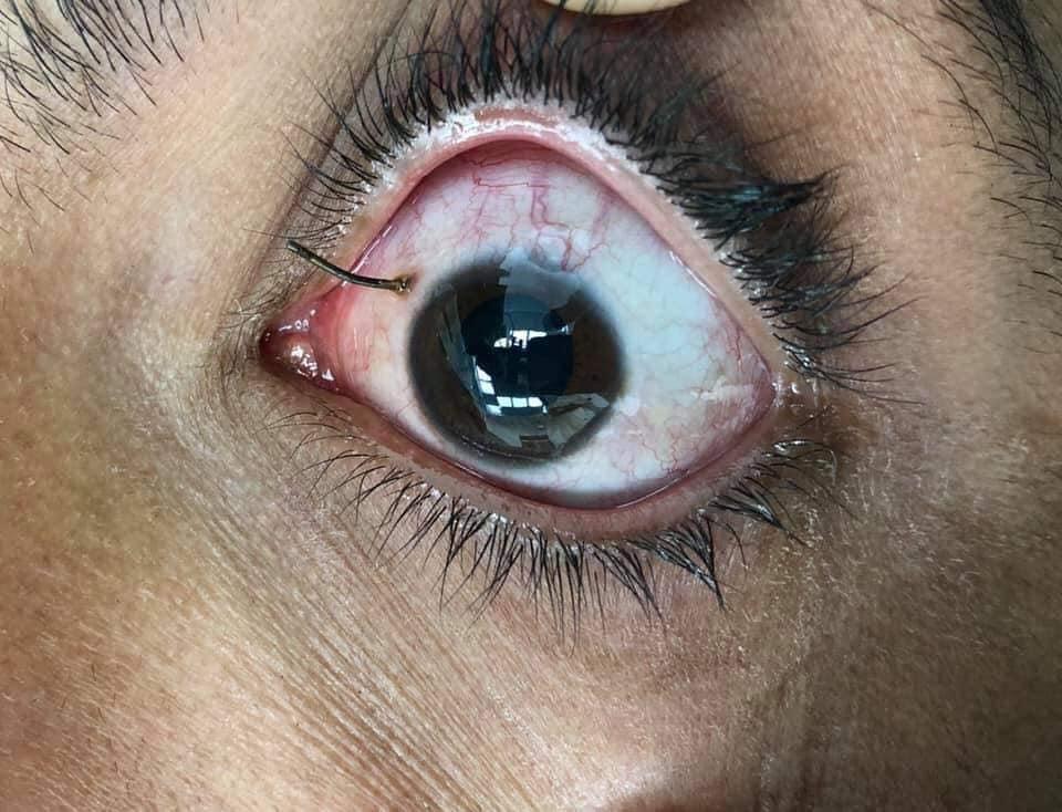 منظومة التأمين الصحى ببورسعيد تنقذ عين بائع متجول (1)