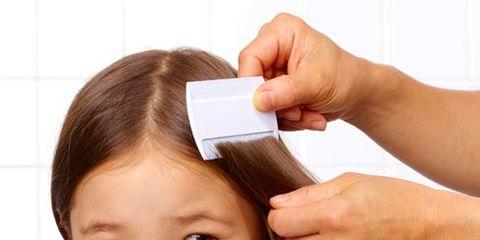 قمل الرأس عند الاطفال