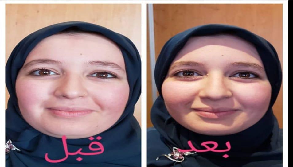 تأثير التجميل بالطاقة الحيوية على الوجه