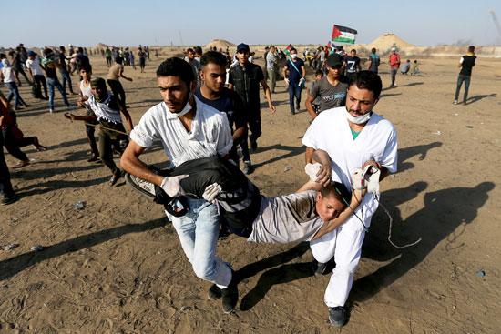 إصابة فتى جراء رصاص الاحتلال