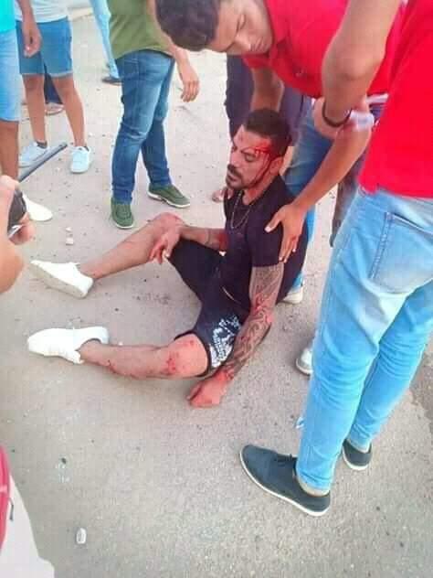 إصابة عمرو زكي نجم الكرة السابق في حادث سيارة بالساحل الشمالي (1)