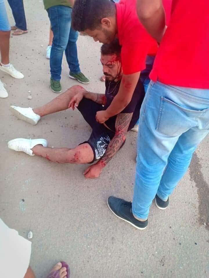 إصابة عمرو زكي نجم الكرة السابق في حادث سيارة بالساحل الشمالي (4)