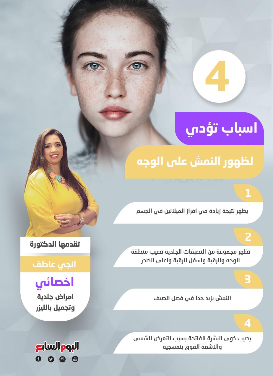 4 اسباب تؤدي لظهور النمش على الوجه