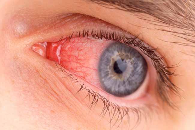 عدوى العين 1