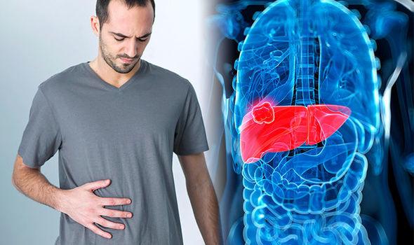 امراض الكبد