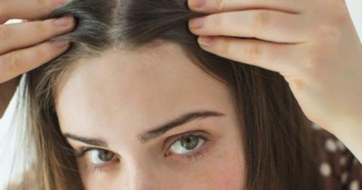 وصفات طبيعية للتخلص من قشرة الرأس (1)