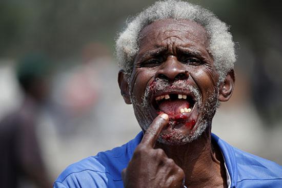 رجل يشير إلى جروحه أمام ضباط الشرطة الوطنية الهايتية