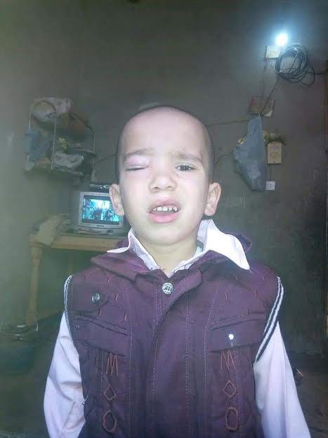 مشرفة حضانة مدرسة ببنى سويف تصيب طفلاً فى عينه