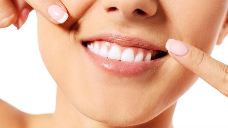 وصفات طبيعية لتبيض الأسنان