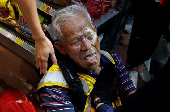 إصابة مُسن فى الاحتجاجات