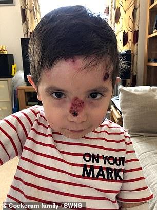 جلد الطفل المصاب