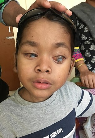 الطفل المصاب بسرطان بالعين