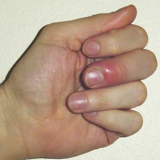 اعراض الاصبع الداحس