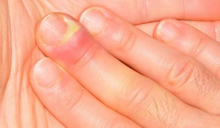 الاصبع الداحس