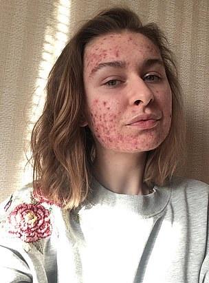 الفتاة الأوكرانية  (2)