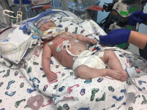 طفل يولد بنصف قلب