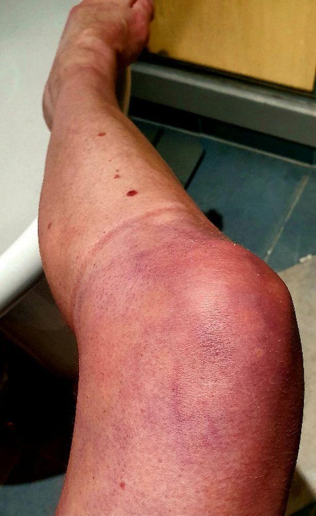 التهاب فى القدم