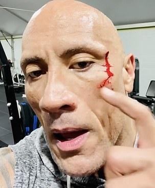 ذا روك يتذوق دمه بعد إصابته في الجيم (3)