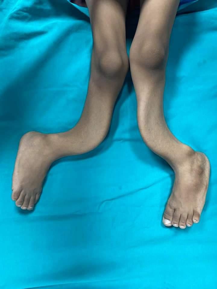 تقويم إعوجاج ساقي طفل منعه من المشي (2)
