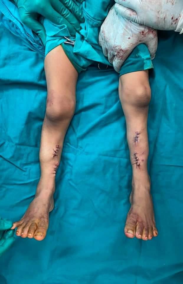 تقويم إعوجاج ساقي طفل منعه من المشي (4)