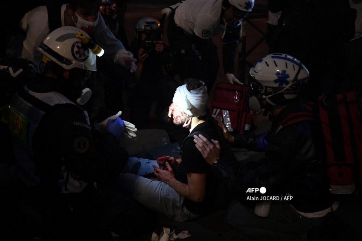 إصابة صحفي في فرنسا