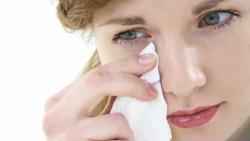 علاج-أكزيما-العين