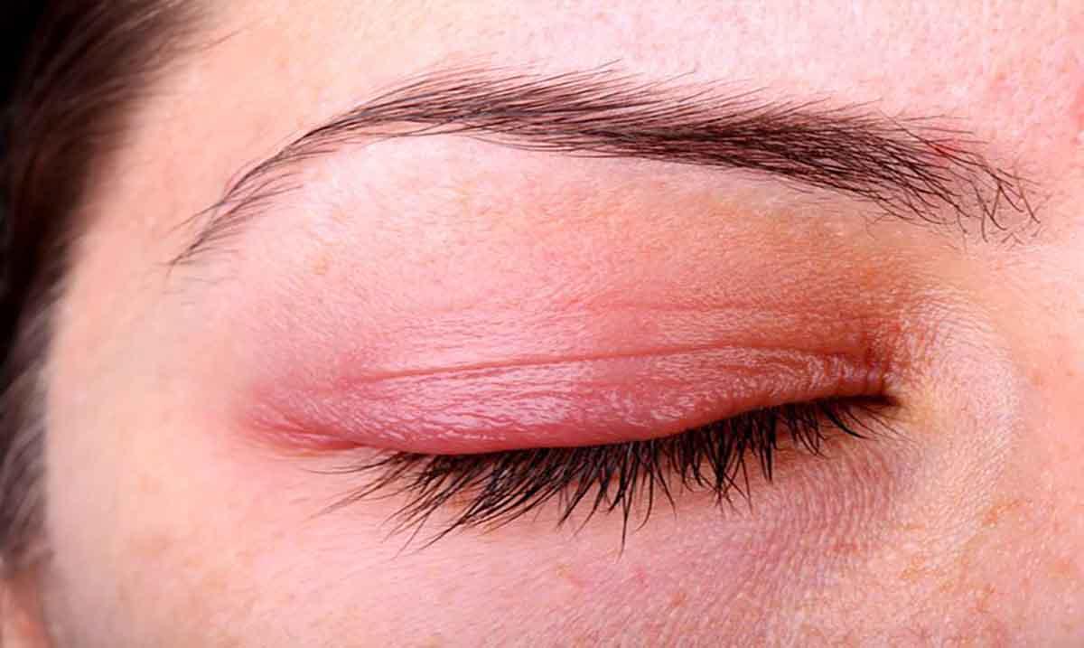 كيفية-علاج-التهاب-الجفن-في-العين