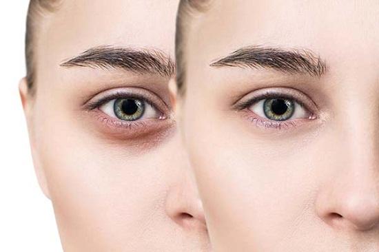 طرق علاج الهالات السوداء أسفل العينين