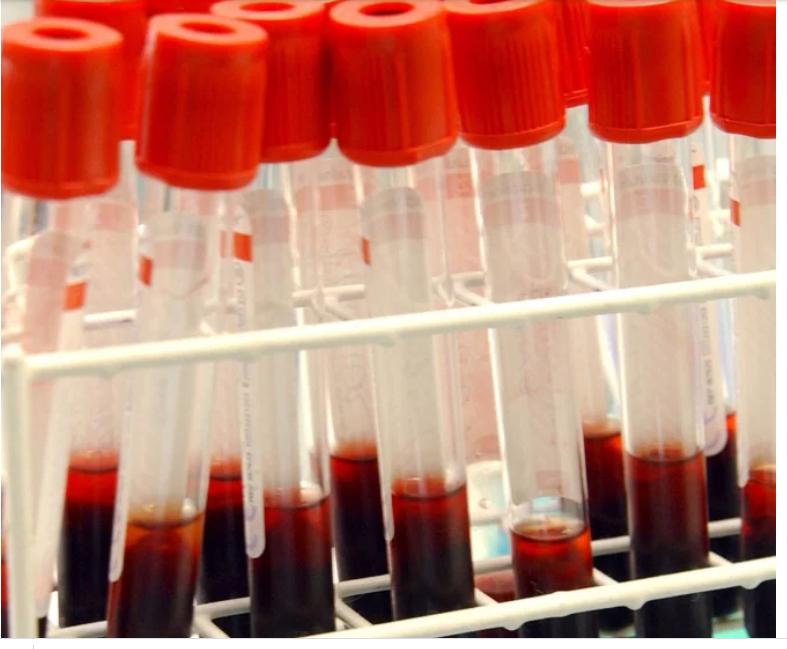 اختبار دم يكتشف الزهايمر قبل الاصابة ب 4 سنوات