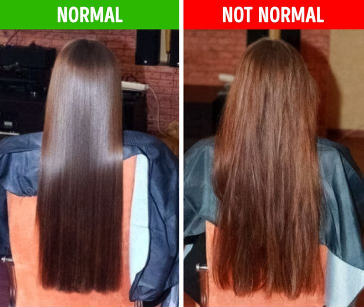 الشعر الباهت