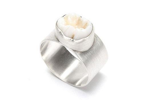 خاتم من الأسنان