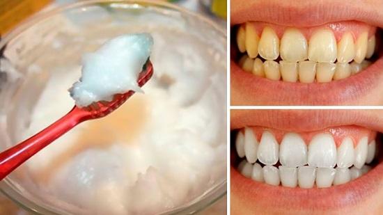 وصفات طبيعية لتبييض الأسنان (4)