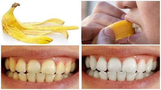 وصفات طبيعية لتبييض الأسنان (2)