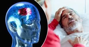 خفض الكوسلترول يحمى من السكتة الدماغية