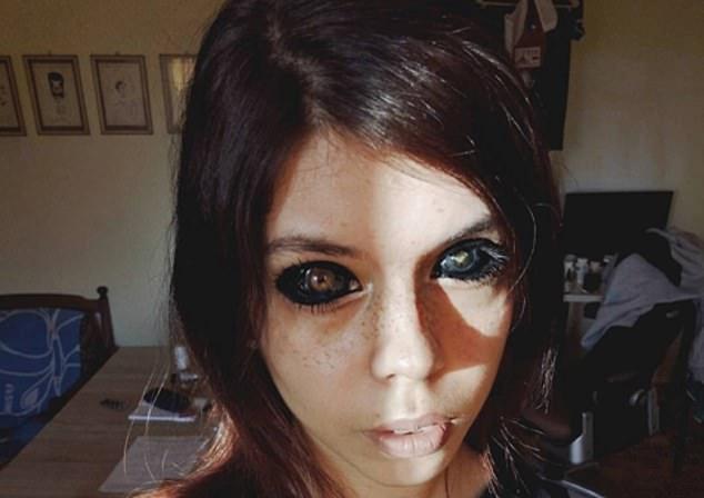 الفتاة بعد أن فقدت عينها